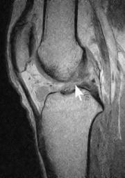 前十字靭帯損傷