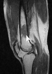 MRI 膝側面像 悪性リンパ腫