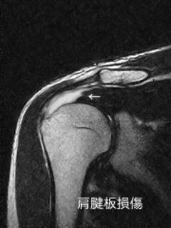 肩腱板損傷