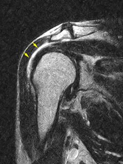 肩峰下滑液包炎のMRI