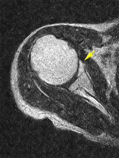 肩関節上方関節唇損傷(SLAP損傷)MRI像