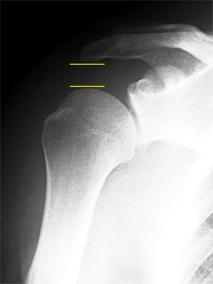 肩関節不安定症(ルーズショルダー) レントゲン画像