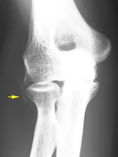 テニス肘:上腕骨外顆部の石灰沈着
