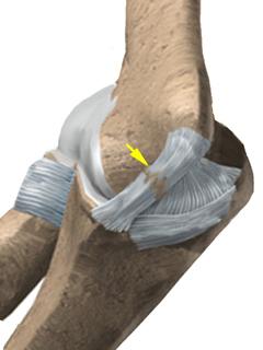 尺内側側副靭帯損傷