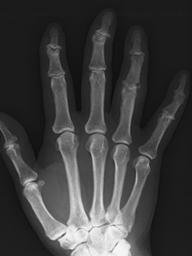 変形性指関節症は第一関節に変形をきたしますがリウマチとは異なります