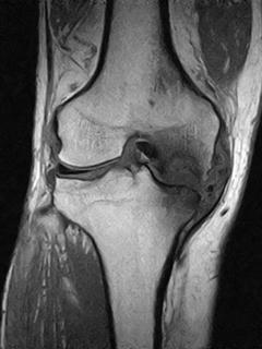 膝変形性関節症のMRI