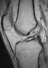 膝前十字靭帯損傷 MRI診断