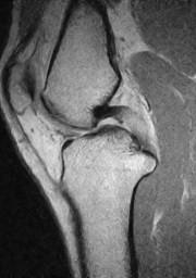 膝後十字靭帯損傷