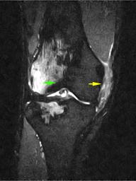 膝内側側副靭帯損傷(MRI)