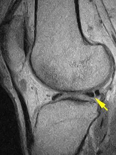 膝外側半月板損傷