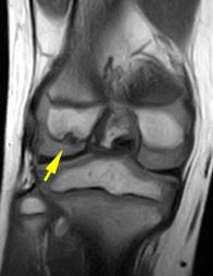 膝離断性骨軟骨炎