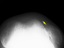 外傷性膝蓋骨脱臼