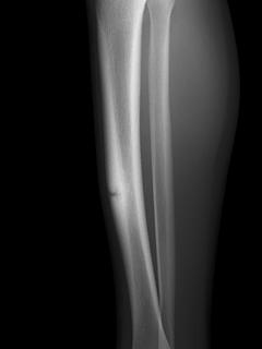 シンスプリントと脛骨疲労骨折は鑑別診断にMRIを行うこともあります.