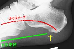 足底腱膜炎踵骨付着部剥離骨折